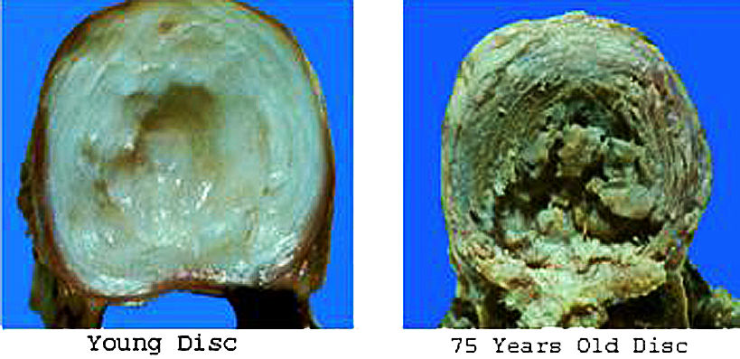 Techlamed Discolux Cervicale